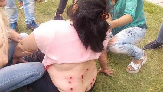 12 balazos de goma en la espalda de una trabajadora municipal platense